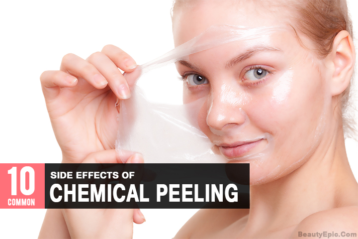 10 Common Side Effects of Chemical Peeling You Never Heard