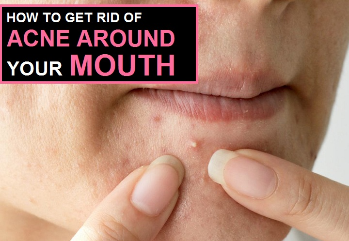 5 Simple Ways to Get Rid of Acne Fast Around Mouth Naturally