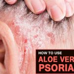 4 Easy Ways to Treat Psoriasis with Aloe Vera at Home