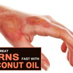 How to Use Coconut Oil for Heal Burns?