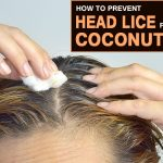 How to Use Coconut oil for Head Lice?