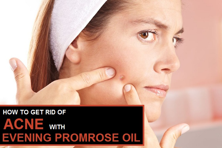 how to get rid of acne fast with evening primrose oil