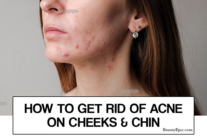 How to Get Rid of Acne on Cheeks and Chin Naturally?