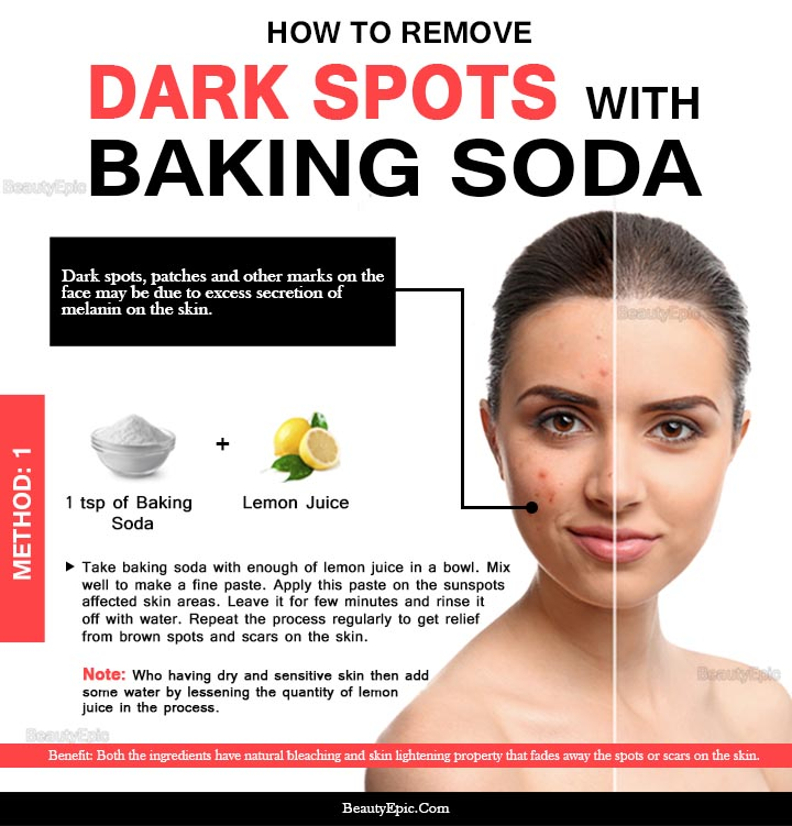 6 Easy Ways To Remove Dark Spots With Baking Soda Naturally
