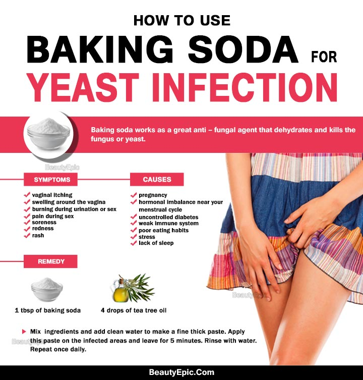 Get Rid Of A Yeast Infection Naturally Fast