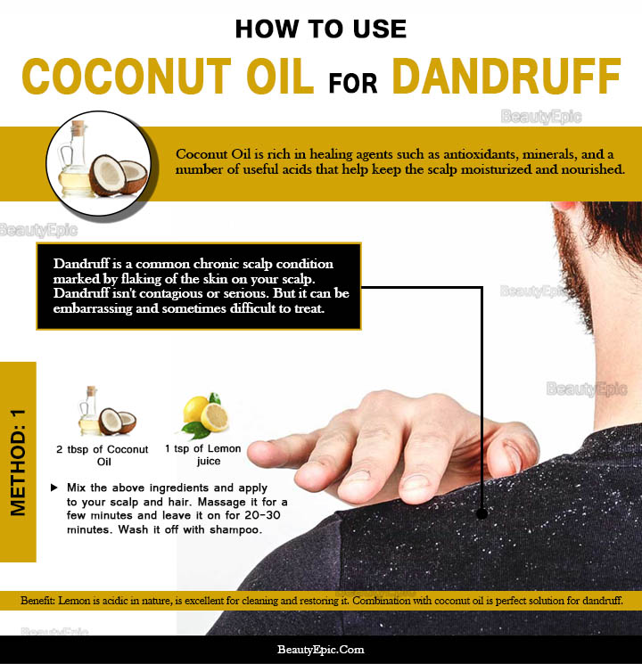 How to Remove Dandruff Quickly with Coconut Oil