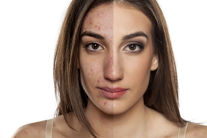 how to use turmeric for acne scars