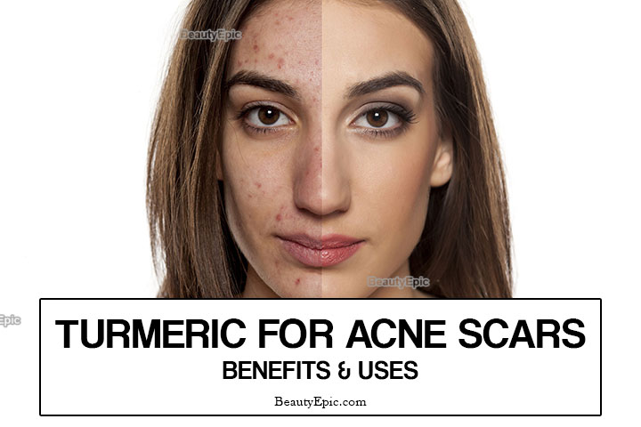 How to Use Turmeric for Acne Scars?