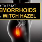 How to Treat Hemorrhoids with Witch Hazel?