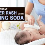 How to Use Baking Soda for Diaper Rash?