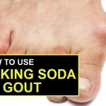 3 Easy Ways to Treat Gout with Baking Soda