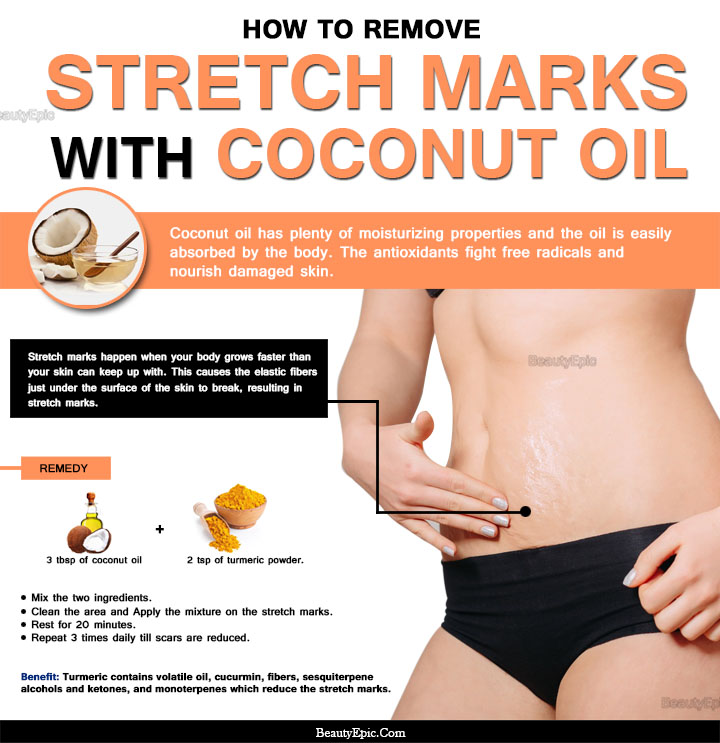 Natural Coconut Oil For Stretch Marks
