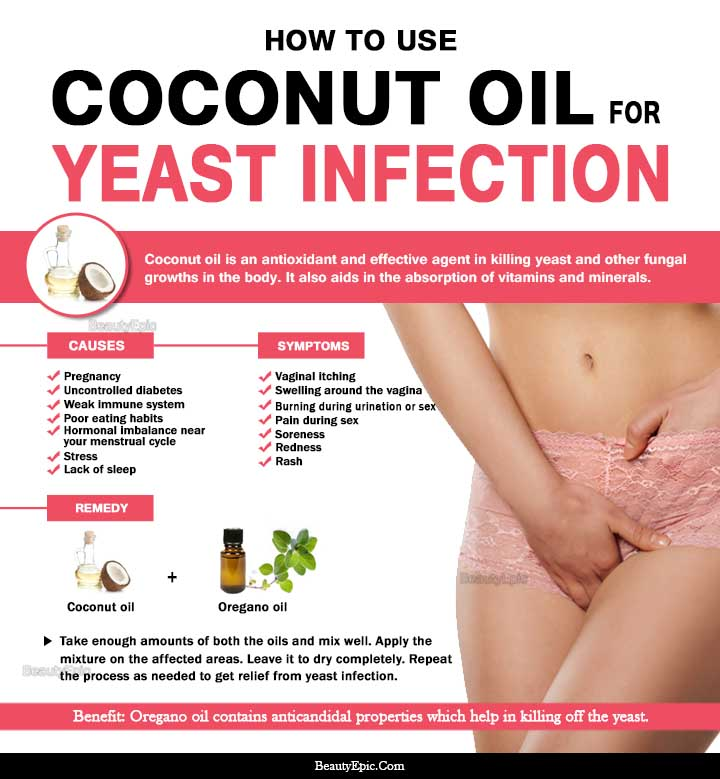 5 Easy Ways to Get Rid of Yeast Infection with Coconut Oil