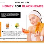 7 Simple Ways to Remove Blackheads Quickly with Honey