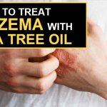 How To Treat Eczema With Tea Tree Oil?