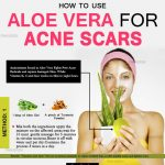 How to Remove Acne Scars Quickly with Aloe Vera?