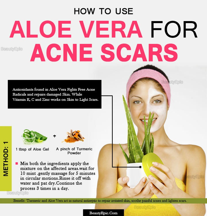 Aloe Vera For Acne Scars Overnight