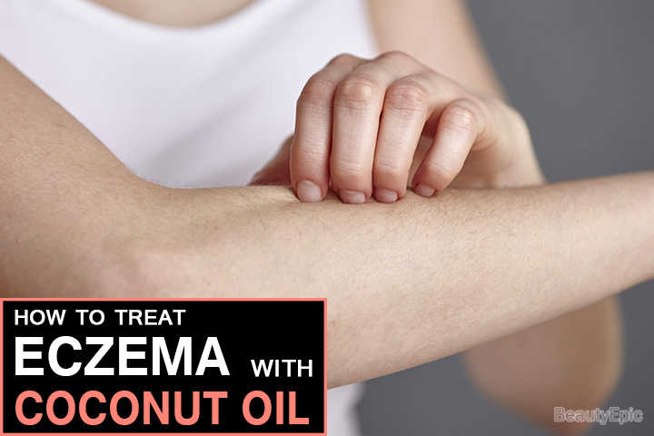 How To Treat Eczema with Coconut Oil