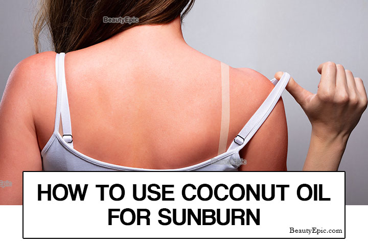 How To Use Coconut Oil For Sunburn Relief?