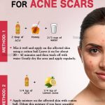 How to Remove Acne Scars Quickly with Apple Cider Vinegar?