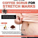 How to Remove Stretch Marks Fast with Coffee Scrub