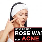How to Use Rose Water to Get Rid of Acne?