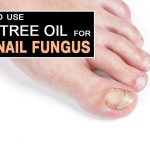 How to Use Tea Tree Oil to Treat Toenail Fungus