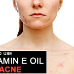 How to Get Rid of Acne with Vitamin E oil