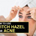 How To Use Witch Hazel To Treat Acne?