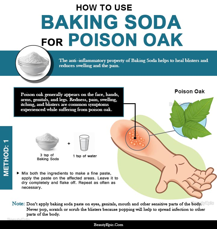 Does Baking Soda Help Poison Oak
