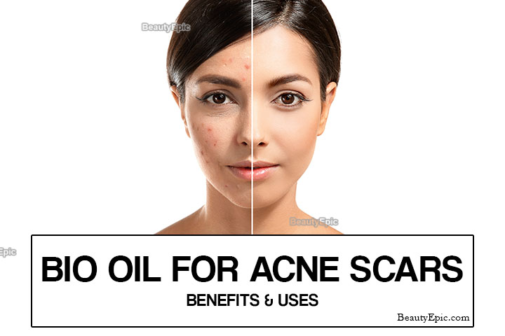 How to Use Bio oil for Acne Scars?