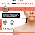 How to Use Bio oil to Remove Acne Scars Quickly?