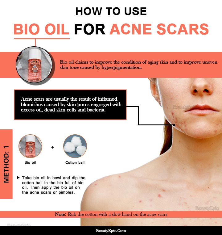 how to apply bio oil for acne scars