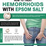 How to Use Epsom Salt to Relieve Hemorrhoids?