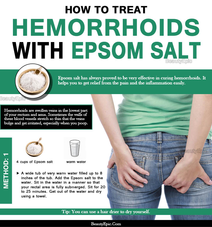How To Get Rid Of Hemorrhoids Naturally With Epsom Salt