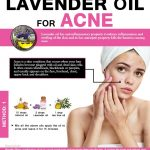 How To Use Lavender oil to Clear Your Acne