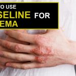 How to Use Vaseline for Eczema?