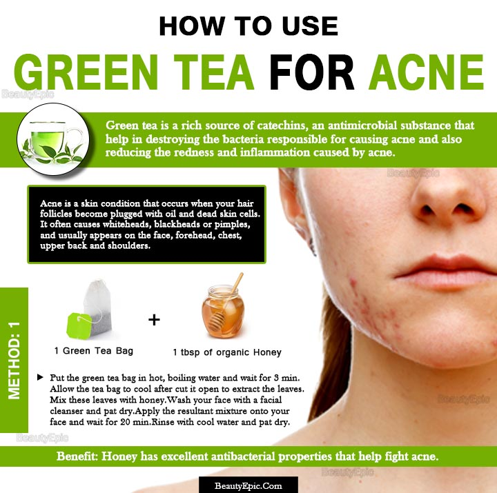 honey and green tea for acne