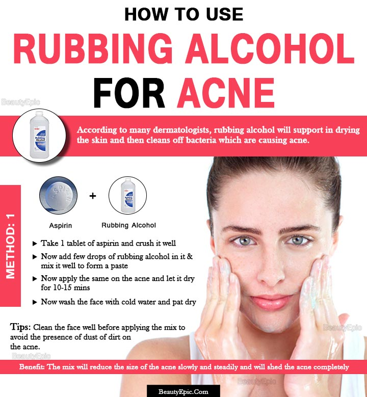 rubbing alcohol for acne