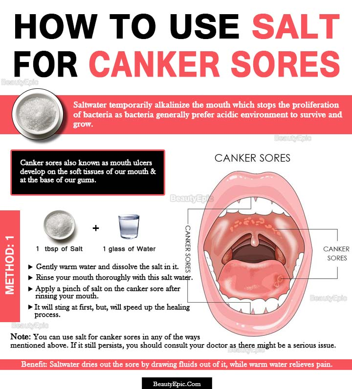 How Does Salt Help Heal Canker Sores?