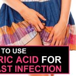 How to Use Boric Acid for Yeast Infection?