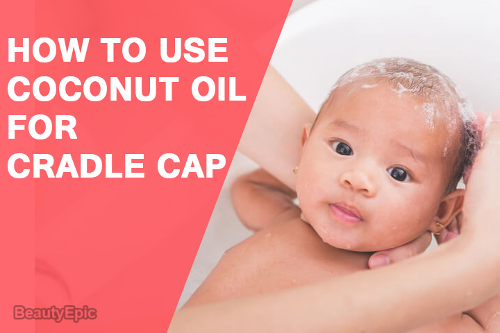 Coconut Oil For Cradle Cap Treatment How To Use