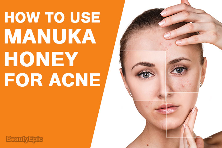 How to Use Manuka Honey for Acne?