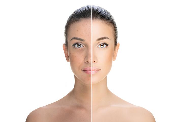 how to use vitamin e oil for dark spots