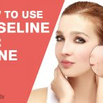 How to Use Vaseline for Acne?