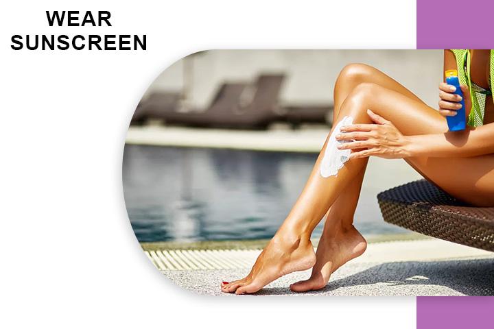 Wear Sunscreenfor Varicose Veins