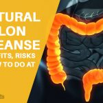 Natural Colon Cleanse: Benefits, Risks & How to Do at Home