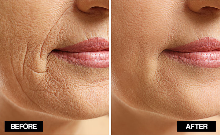 how do you get rid of wrinkles