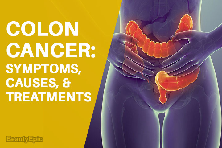 Colon Cancer: Symptoms, Causes, And Treatments