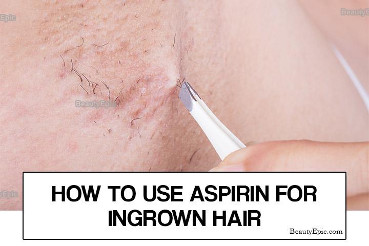 How to Get Rid of Ingrown Hairs with Aspirin